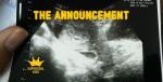The announcementardisazUSG